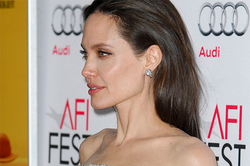 Jolie appeared in public with bruises (photos)