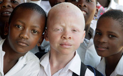 In Africa barbarians prey on children with albinism