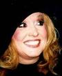 New smile of Alla Pugacheva